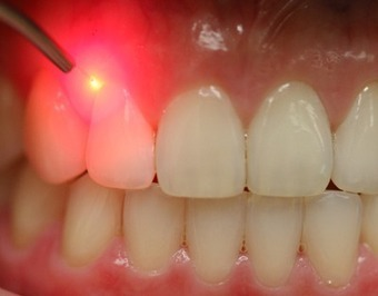 Exclusive Laser Based Dentistry Products | Dental Practice For Sale | Scoop.it