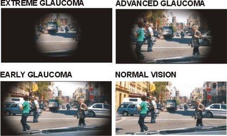 Glaucoma, si se detecta a tiempo se conserva la visión   Salud Visual 2.0   Scoop.it