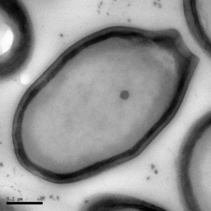 Record du virus géant : les pandoravirus prennent la tête | première année de médecine | Scoop.it