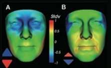 Researchers link facial structure to kidney disease - Medical Xpress - Medical Xpress | Organ Donation & Transplant Matters Resources | Scoop.it