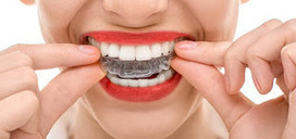 Must Known things about Invisalign Process Of Melbourne   Gowerst Dental   Scoop.it