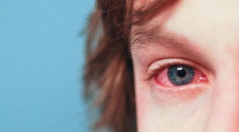 Pollution + allergies: la France en alerte au mix infernal | Toxique, soyons vigilant ! | Scoop.it