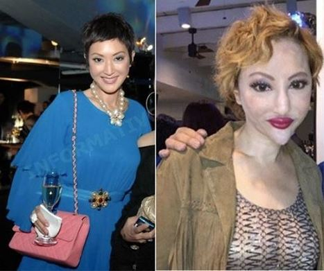 Plastic Surgery Horror: Gorgeous Chinese Actress' Post Surgery Face Will Shock You - The DailyPedia | International Treatment News | Scoop.it