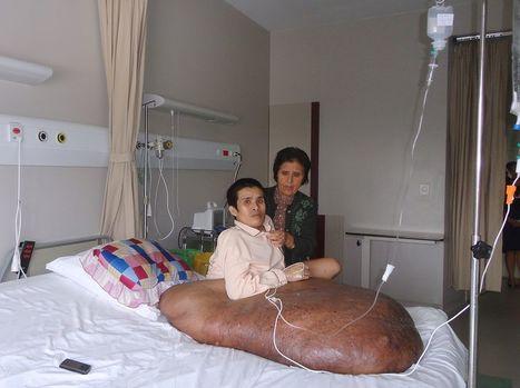 Vietnam. Un homme opéré d'une tumeur de 90 kilos | Mais n'importe quoi ! | Scoop.it