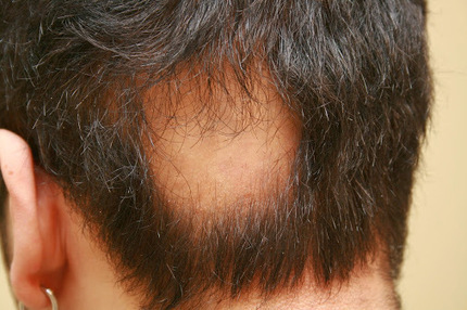 Hypothyroidism is a condition in which the body have insufficient thyroid…   Hair and Skin   Scoop.it