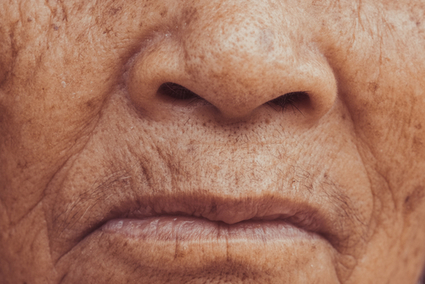 How to Eliminate Wrinkles | Houston Wellness Clinic | Adult Stem Cells Repair Body | Scoop.it