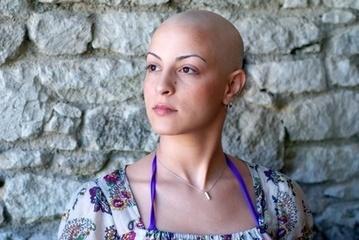 Moi et mon crâne chauve   la maison du cancer   Cancérologie et soins de support   Scoop.it