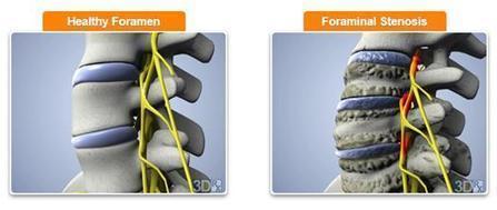 Foraminal Stenosis Treatment | samedayspinesurgery | Scoop.it