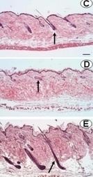 Actu santé : CALVITIE : Découverte d'un peptide «miracle» pour la repousse des cheveux   Technogeekdefence   Scoop.it