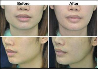 Jaw Reduction Thailand - Urban Beauty Thailand | Facelift Thailand Find Thai Face Lift Best Surgeons in Bangkok, Phuket Thailand | Scoop.it