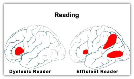 The Causes of Dyslexia - What the Latest Science Reveals | Cool School Ideas | Scoop.it