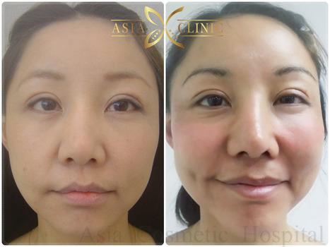 Chin Augmentation - Genioplasty | Chin Surgery in Thailand | AsiaPlasticSurgery | Scoop.it