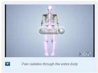 Sciatica Back Pain Treatment Tulsa | samedayspinesurgery | Scoop.it