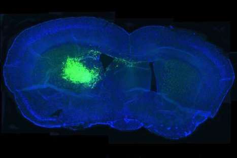 Pathway linked to slower aging also fuels brain cancer | Long Life | Scoop.it