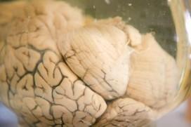 A Tiny Molecule May Help Battle Depression | Social Neuroscience Advances | Scoop.it
