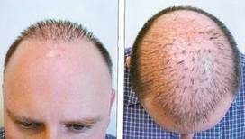Why to choose Hair Transplant Treatment   Royal Cosmetic Surgery   Scoop.it