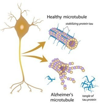 "UTMB Galveston Targets ""Tau"" to Treat Dementia - BioNews Texas | PET imaging | Scoop.it"