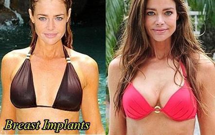 Did mariah carey get boob implants normal that