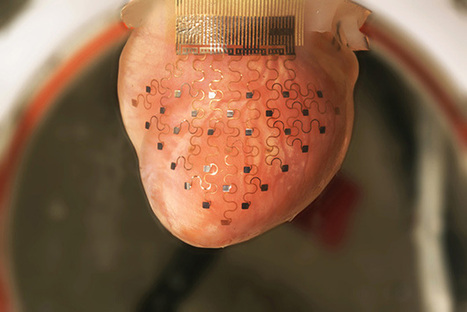 3D-Printed Patch Can Reverse A Heart Attack - PSFK | Los Medicos | Scoop.it