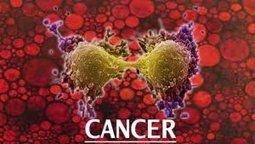 Cancer du sein, le pavé dans la mare d'une radiologue | Toxique, soyons vigilant ! | Scoop.it