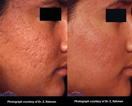 Effective Acne Scar Removal | erfectskincenter | Scoop.it