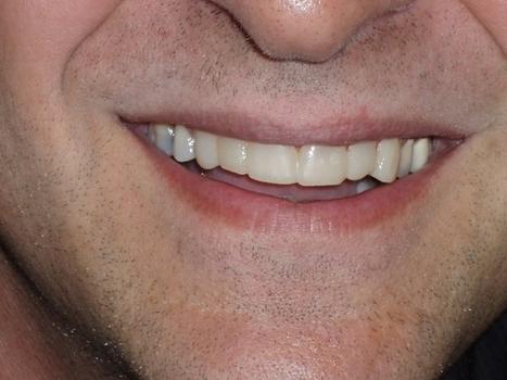 Smile Gallery - Dentist in Ajax | Singer Dental | Scoop.it