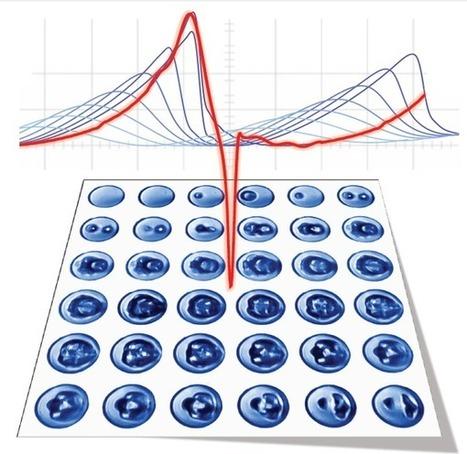 A breakthrough in medical acoustics - Phys.org | Acoustics, Sound, Noise | Scoop.it