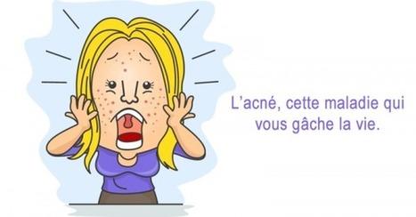 L'acné, cette maladie qui vous gâche la vie | RésoSanté | Scoop.it