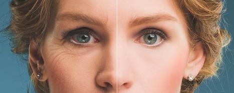 Dieci anni in meno sul viso: Tutti gli interventi dall'A alla Z | Your TopNews | Scoop.it
