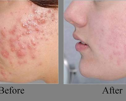 Stunning Tips for Removing the Deadly Pimples | onlineremedy | Scoop.it