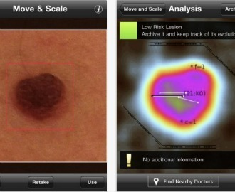 Diagnosing Skin Cancer via iPhone: The Apps to Know | Health and Biomedical Informatics | Scoop.it