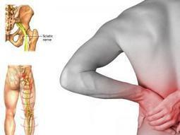 Sciatica Causes, Symptoms, Diagnosis , Treatment on medibird.com | Ayurvedic Treatments | Scoop.it