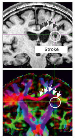 Regeneration after a stroke requires intact communication channels between brain hemispheres | Psychology and Brain News | Scoop.it