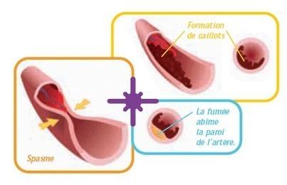 Tabac : un poison pour le cœur et pour le corps | Toxique, soyons vigilant ! | Scoop.it