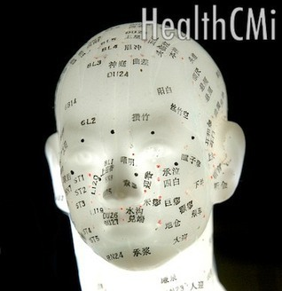 Acupuncture & Ginger Moxibustion Effective for Tinnitus - New Study | Acupuncture for the Nervous system and brain | Scoop.it