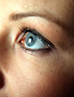Acupuncture Beats Drugs for Eye Twitching - New Research - HealthCMI | LightWorker | Scoop.it