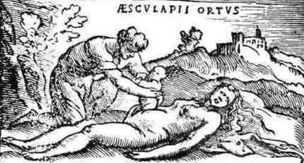 1753 Une césarienne à Argentan | Généalogie autour du Houlme | L'écho d'antan | Scoop.it