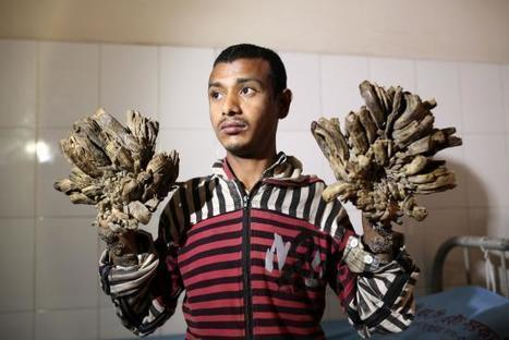 Bangladesh to Pay for Surgery for 'Tree Man' | Science and Global Education Trends | Scoop.it