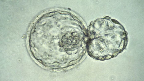 Scientists Make History By Genetically Modifying Human Embryos | The Long Poiesis | Scoop.it