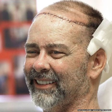 US man has first skull and scalp transplant - BBC News | The future of medicine and health | Scoop.it