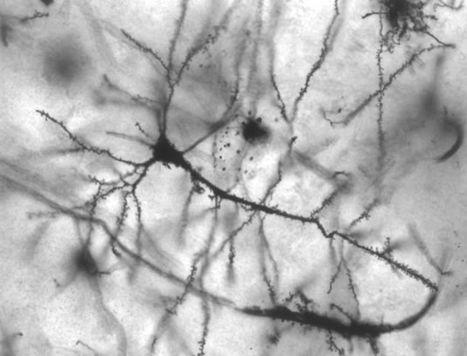 Le cerveau se « recâble » tout seul après une lésion - Science et Vie | neurosciences | Scoop.it