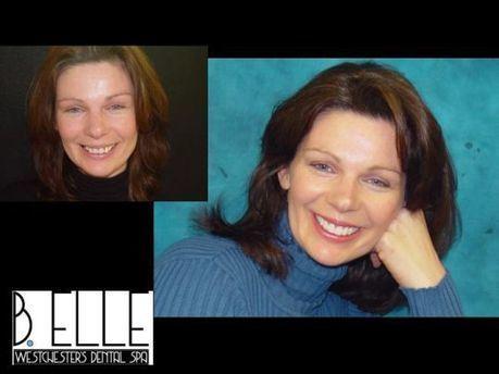 westchester porcelain veeners | your amazing smile | Scoop.it