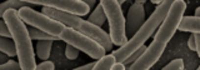 USDA explores faster E.coli detection method | Sistemas de Gestión | Scoop.it