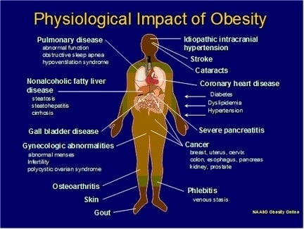 physiological_impact_of_obesity.jpg (509x383 pixels) | How good exercise is for your body | Scoop.it