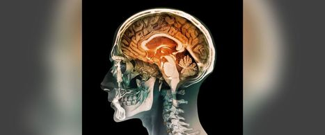 New Test to Diagnose Concussions   California Brain Injury Attorney News   Scoop.it