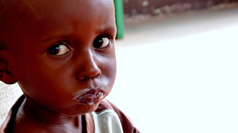 Malnutrition in conflict: the psychological cause | NGOs in Human Rights, Peace and Development | Scoop.it