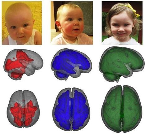 Confirman con imágenes el beneficio cerebral de la leche materna | medicina | Scoop.it