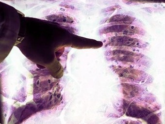 News from New Zealand: Mesothelioma Cancer Cases on Rise in Australia   Asbestos and Mesothelioma World News   Scoop.it