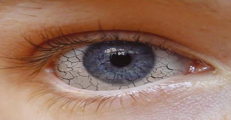Más del 25 % de la población padece miopía y crece el síndrome del ojo seco | Salud Visual 2.0 | Scoop.it