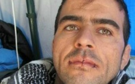 Iranian Refugees Sew Lips Together, Go on Hunger Strike | Human Rights and the Will to be free | Scoop.it